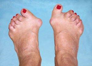 ce articulații ale picioarelor doare cu artrita reumatoidă