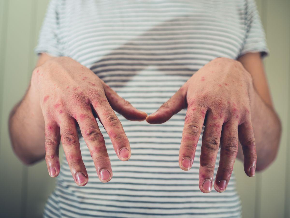 boala articulației de primăvară)