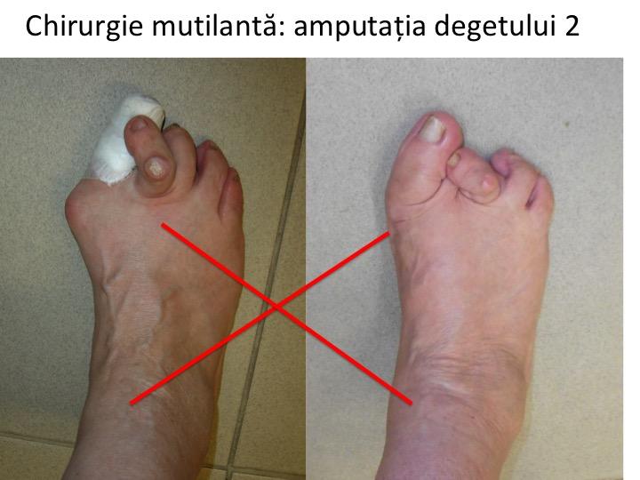 tratamentul inflamației genunchiului după rănire ce este luat pentru inflamația articulară