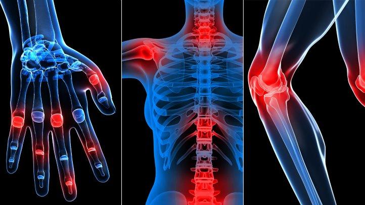dureri articulare și nerv sciatic