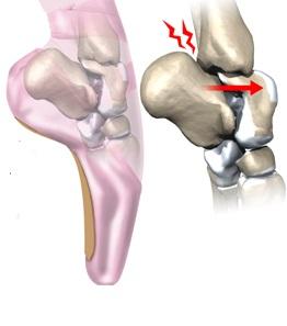 durere și se încrețește articulația gleznei