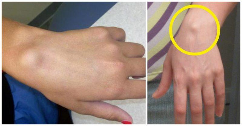 încheietura mâinii