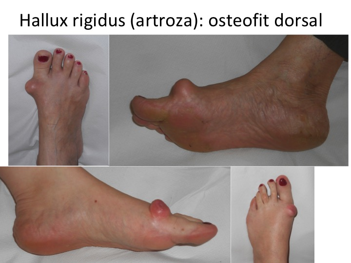 cum poate trata artroza piciorului