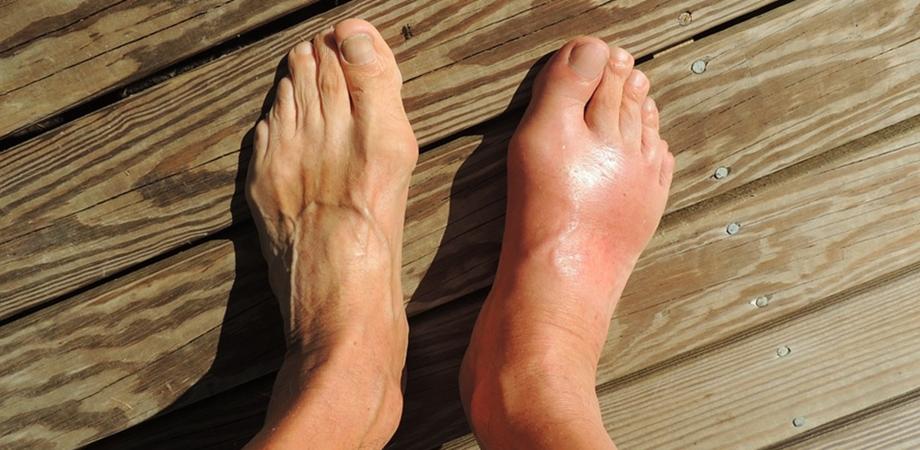 artrita guta a simptomelor articulației cotului și tratament artroza deformantă a genunchiului de gradul I este