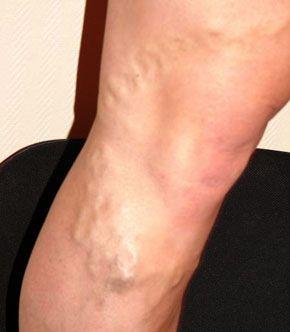 vene varicoase și boli ale articulațiilor