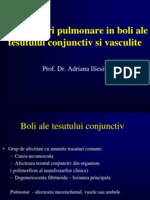 boala sistemică a țesutului conjunctiv cu leziuni pulmonare)