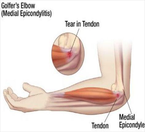 dureri la nivelul cotului epicondilitei ce este luat pentru inflamația articulară