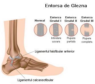 tratarea leziunilor ligamentului gleznei