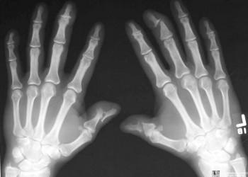 artroza articulațiilor interfalangiene ale degetelor de la picioare
