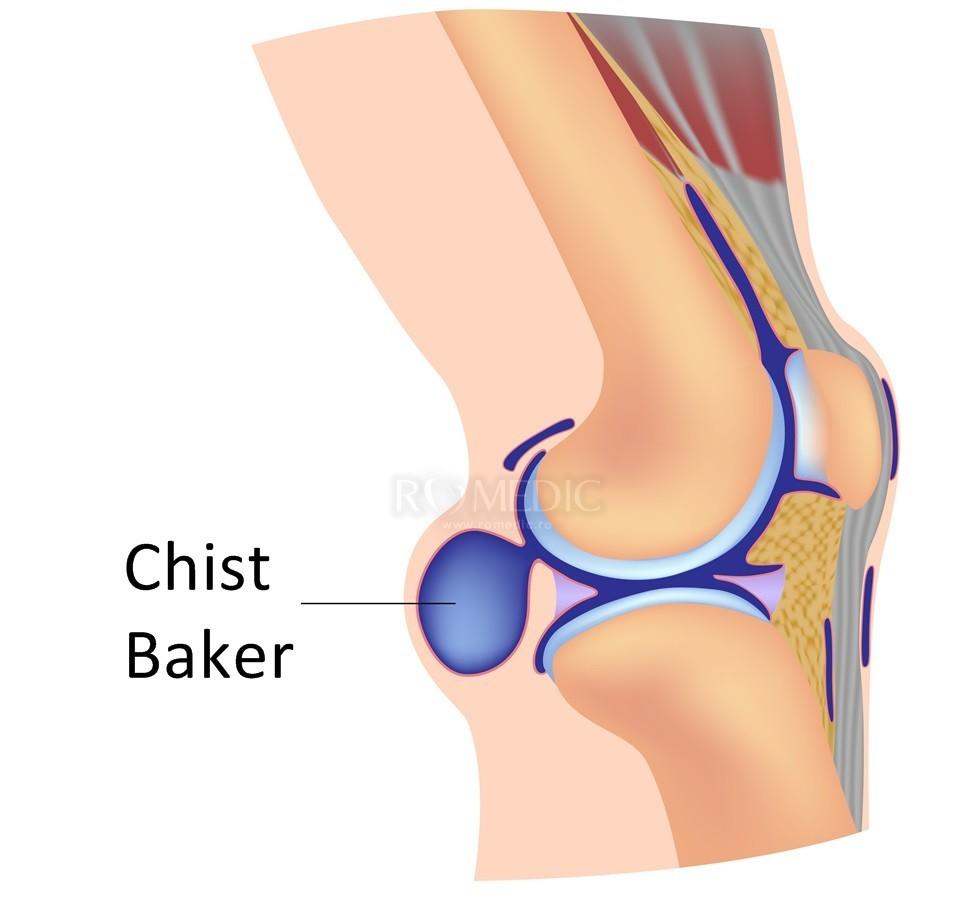 uzura articulațiilor genunchiului