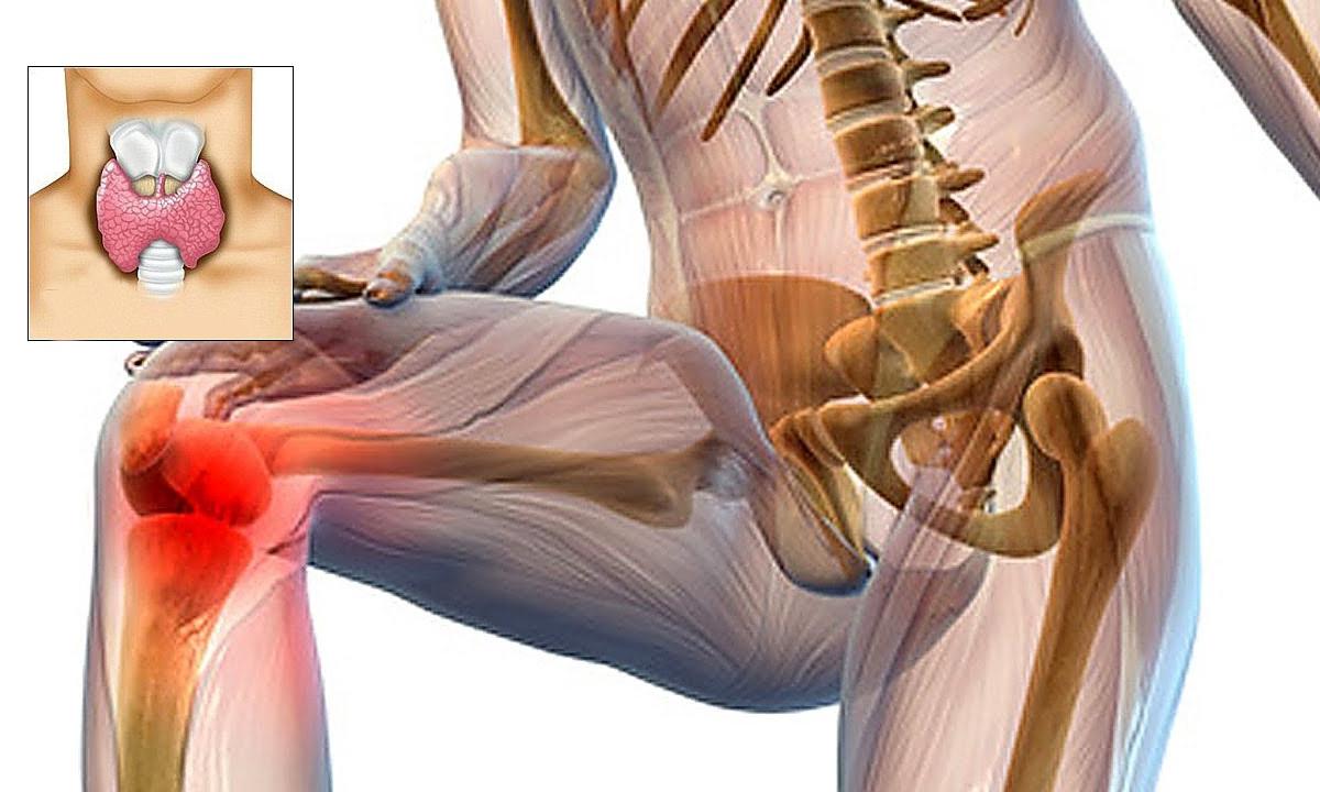 boli musculare și articulare)