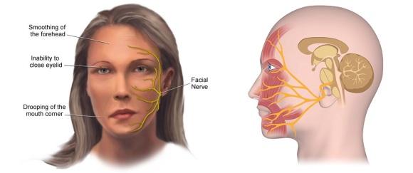 tratamentul articulației faciale superioare inferioare)