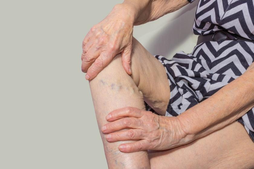 coapsa umflată și dureroasă