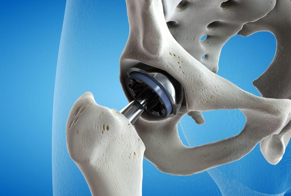 după săritură, articulația șoldului doare