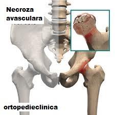 tratamentul osteosclerozei la genunchi)