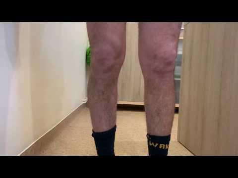 artroso-artrita preparatelor genunchiului)
