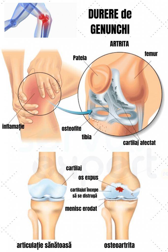 ceea ce înseamnă dureri la nivelul genunchiului)