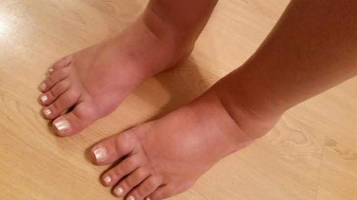 remedii pt picioare umflate