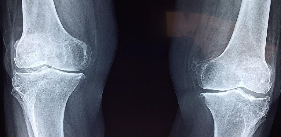 tratamentul fracturilor articulare)