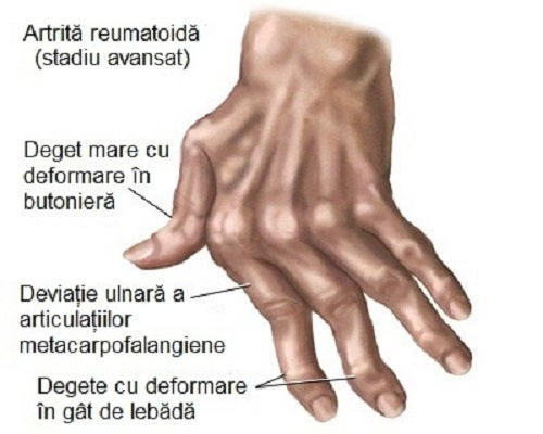 Artrita degetelor .testare și tratament - blumenonline.ro