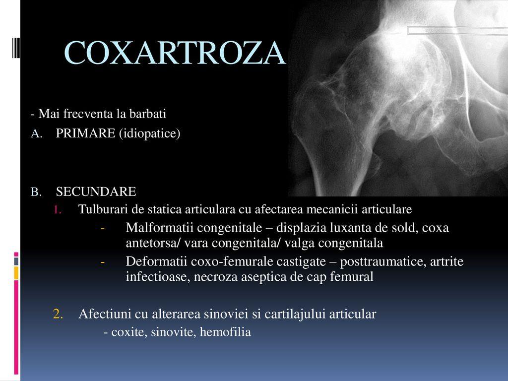 clase de boli osoase și articulare