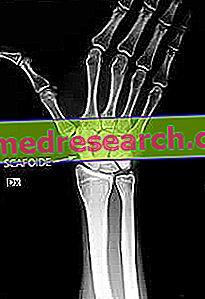 numele inflamației la încheietura mâinii inflamația musculară a genunchiului