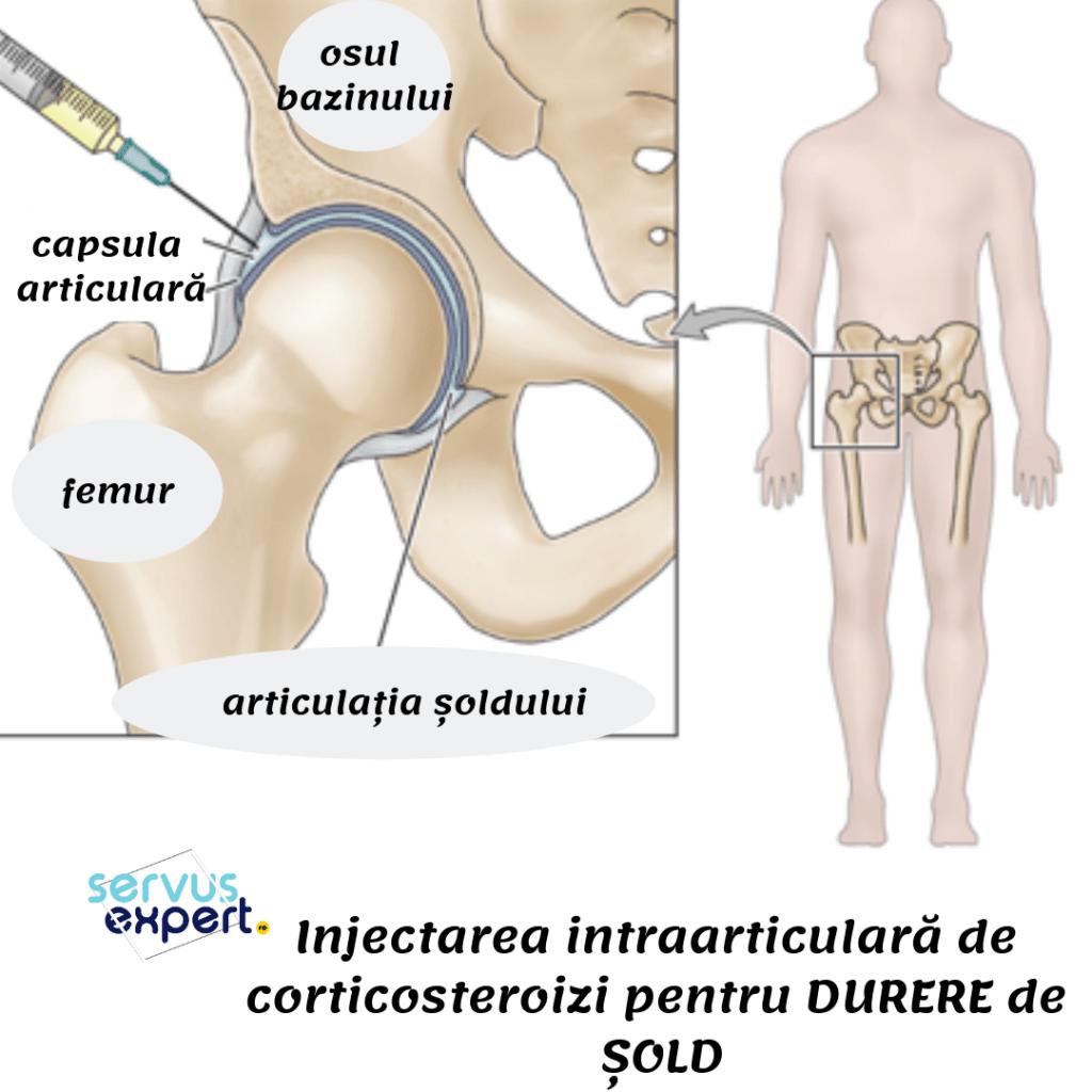 durere în articulația șoldului, care sunt utilizate injecții)