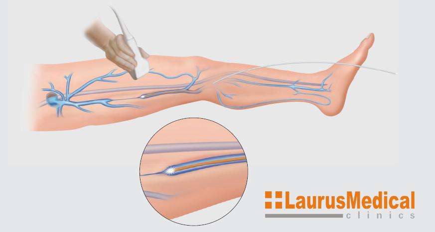 pretul tratamentului cu artroza laser)