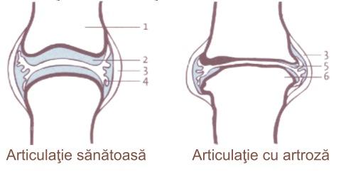 cum să elimini inflamația dintr-o articulație)