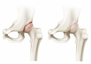 Coxartroza – artroza deformantă a articulației șoldului – blumenonline.ro