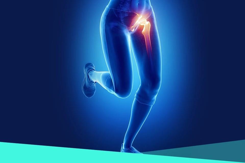 coxartroza durerii genunchiului de șold durere în articulațiile picioarelor după o răceală