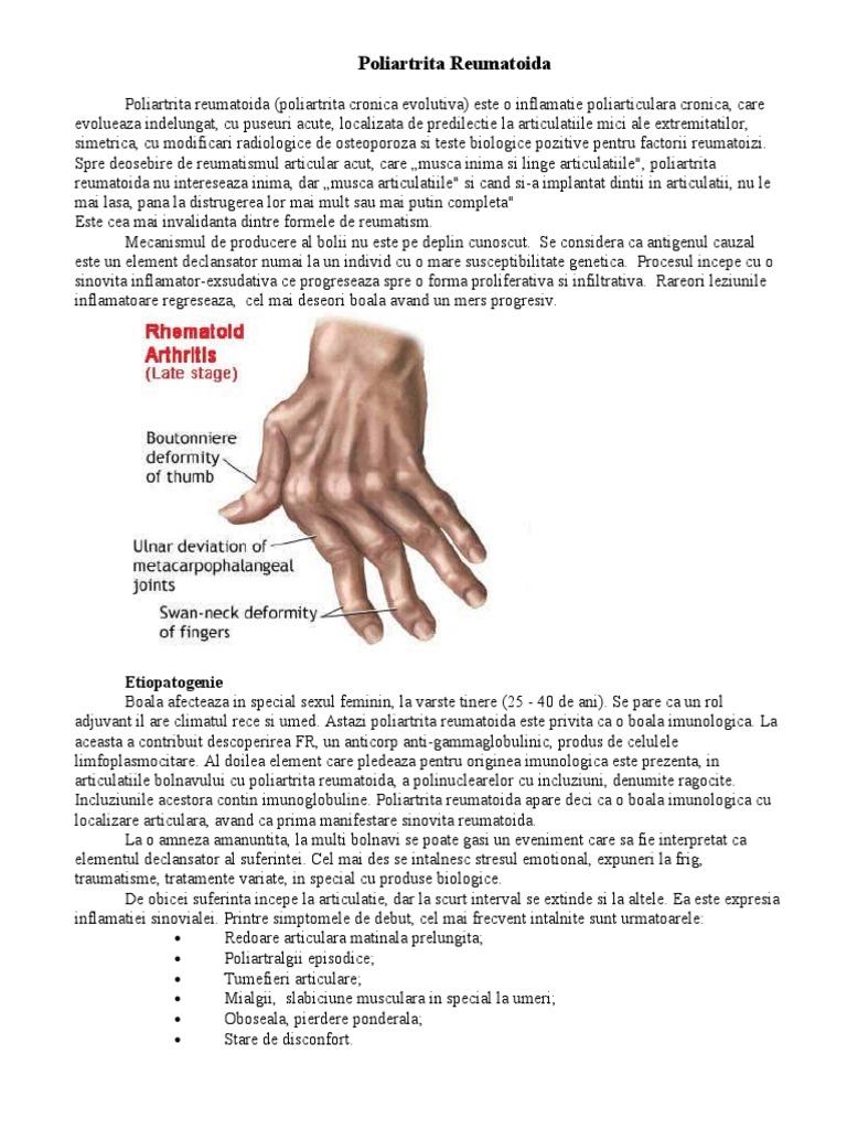 boală articulară simultană