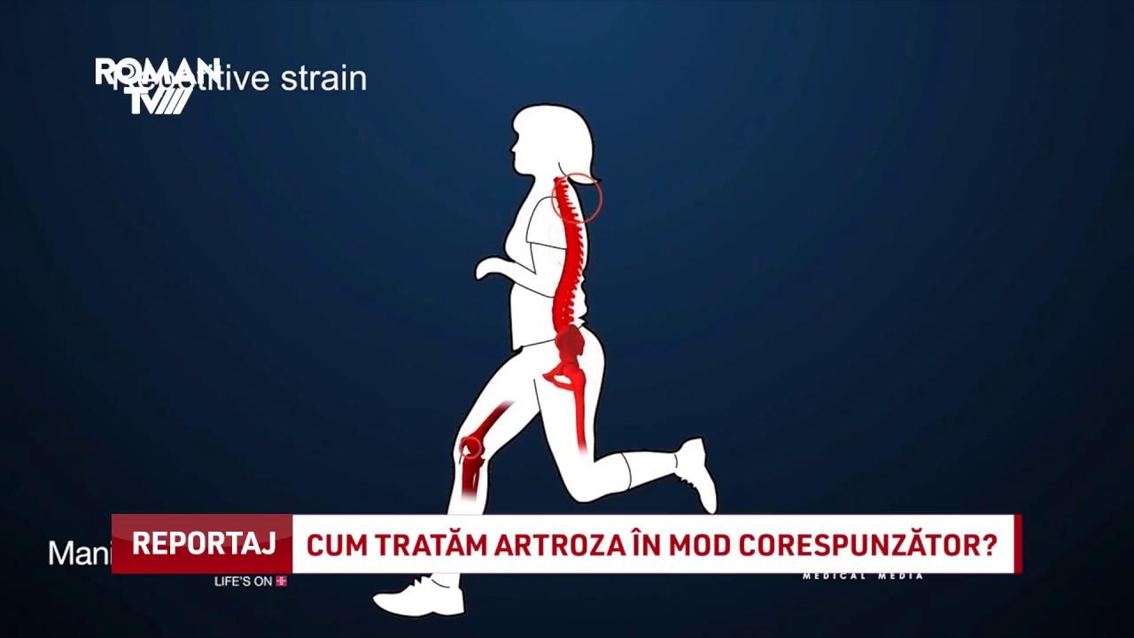 cum tratam artroza)