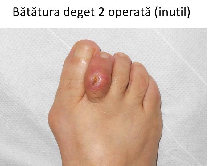tratamentul fracturii articulare a degetelor