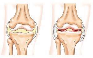 osteoartroza genunchiului)