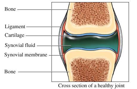 faceți clic pe articulațiile osteocondrozei după ce o articulație balansoară doare
