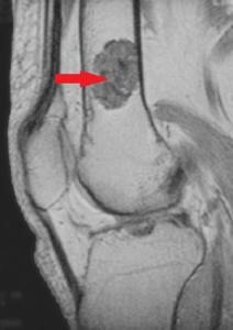 tratamentul condromului genunchiului