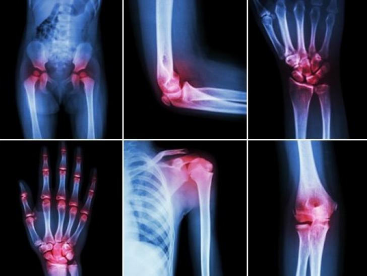 articulațiile mâinii rănesc antebrațul