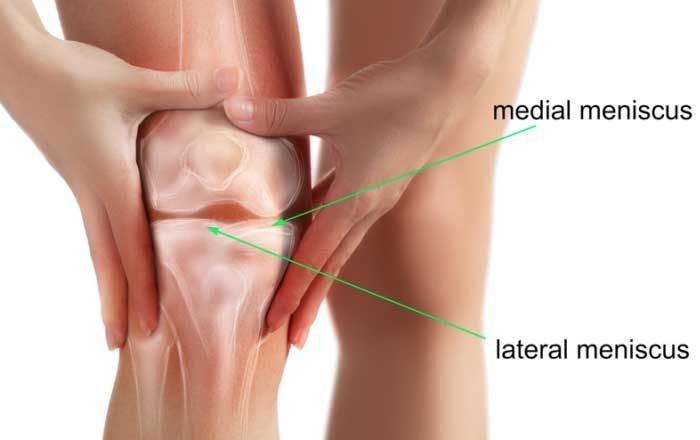 deteriorarea meniscului articulației genunchiului drept