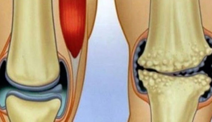 miere pentru durere în articulațiile genunchiului)