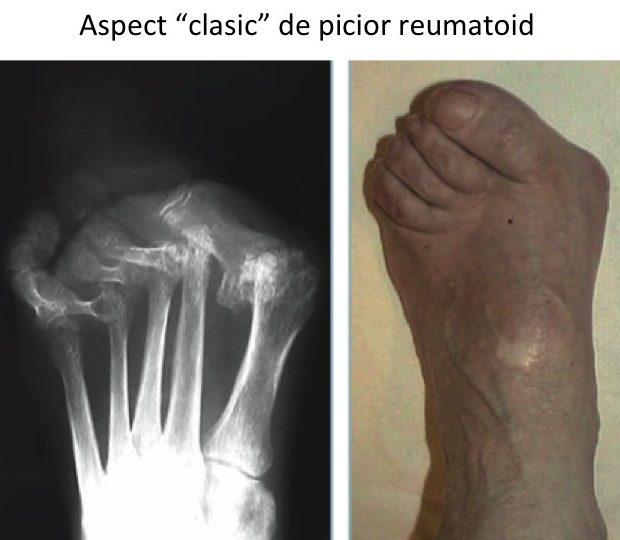 artroza artrita articulațiilor piciorului
