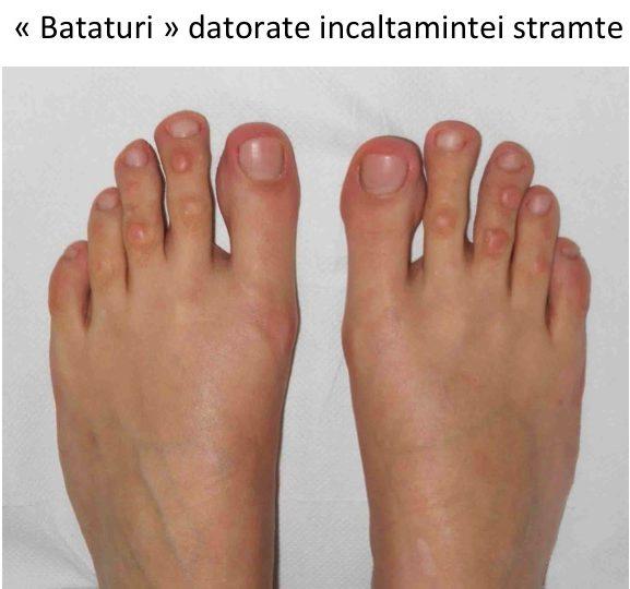 artrita reumatoidă a degetelor de la picioare)