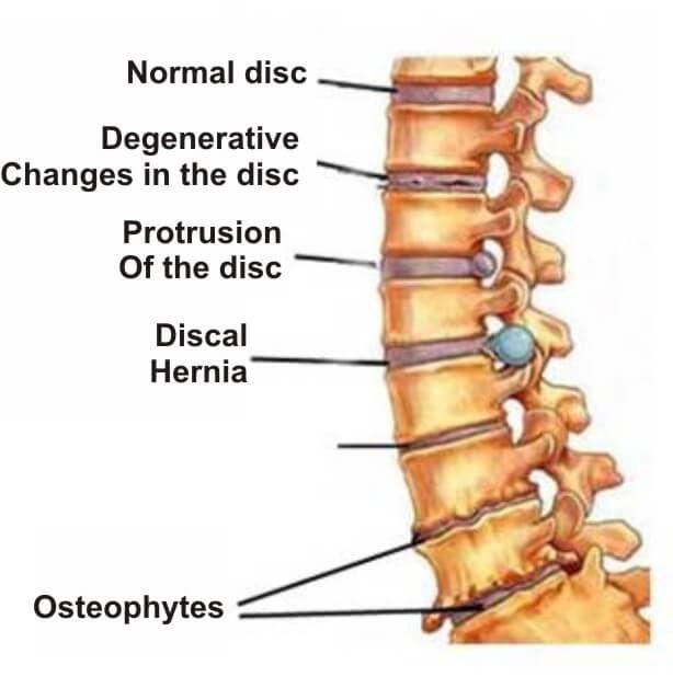 osteocondroza bolii articulare)