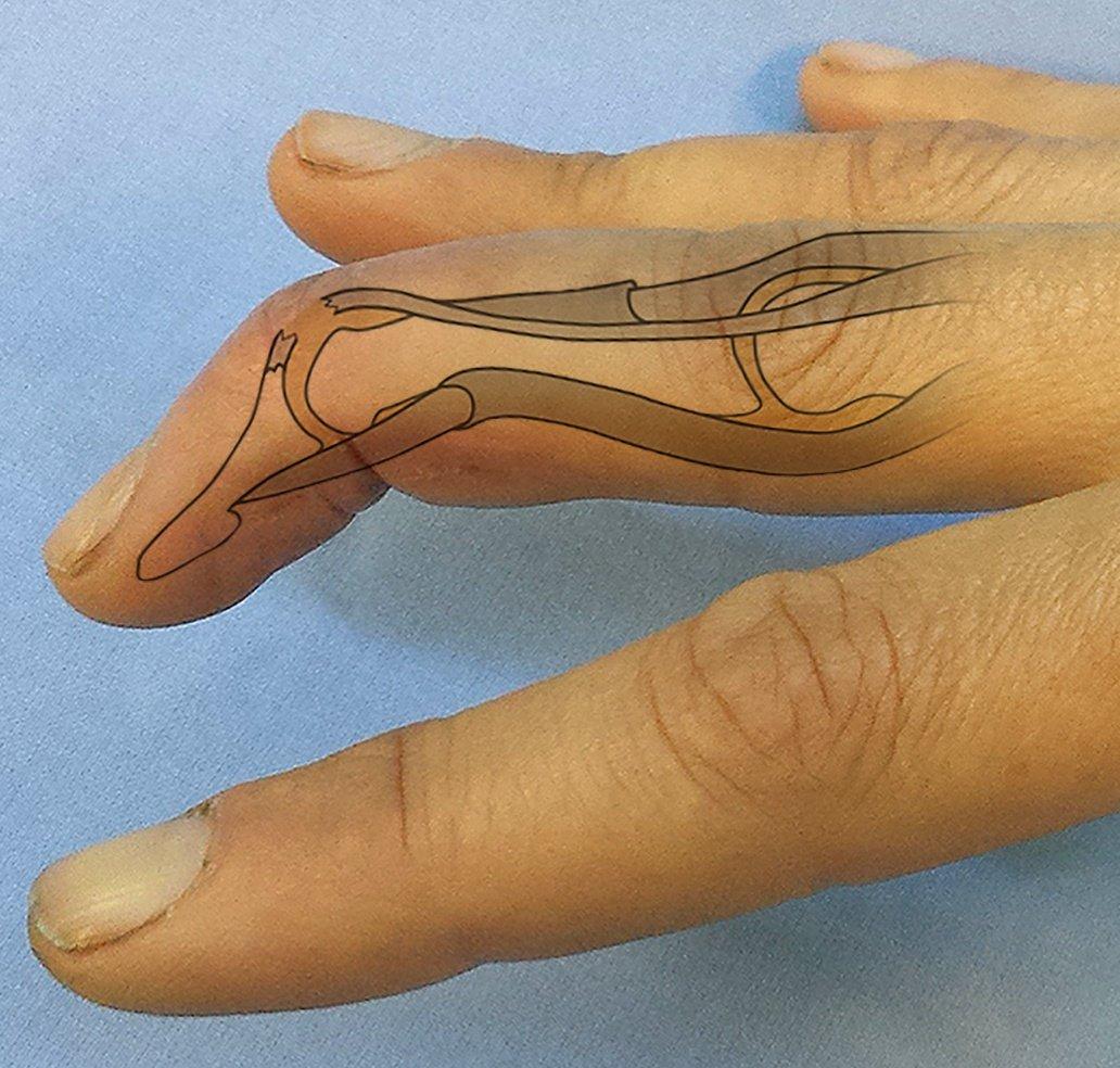 cum să tratezi o articulație dureroasă pentru deget)