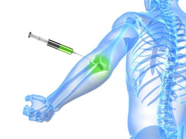 tratamentul articulațiilor cu celule stem