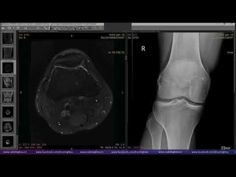 blocul novocainic al articulației genunchiului