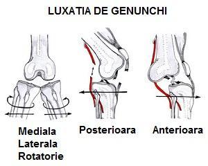 artrita lupusă a genunchiului