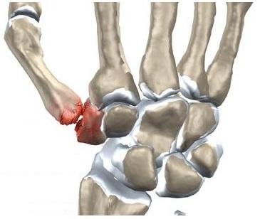 umflarea articulației degetului)