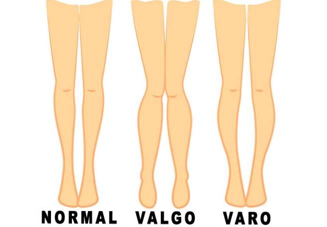 cum să inserați o articulație pe genunchi