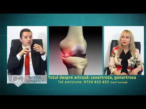 Artroza deformantă a tratamentului coloanei vertebrale cervicale